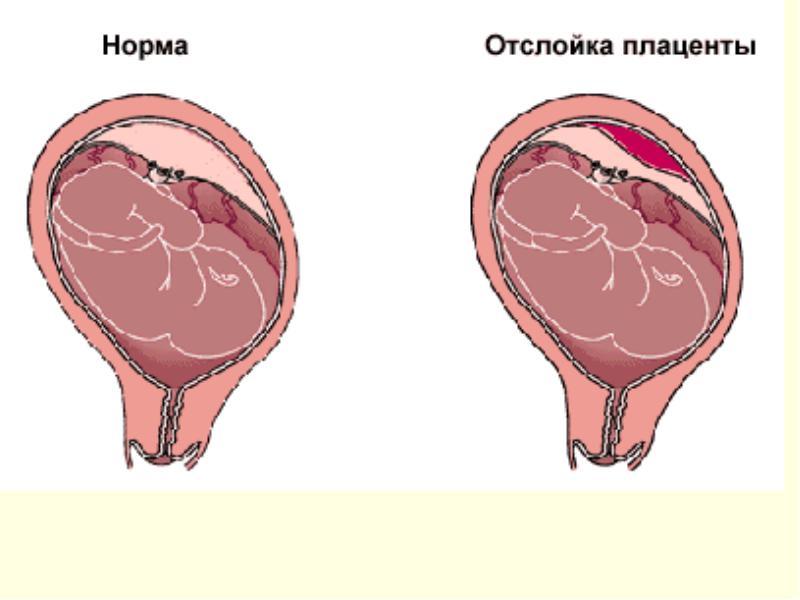 Особенности 33 недели беременности