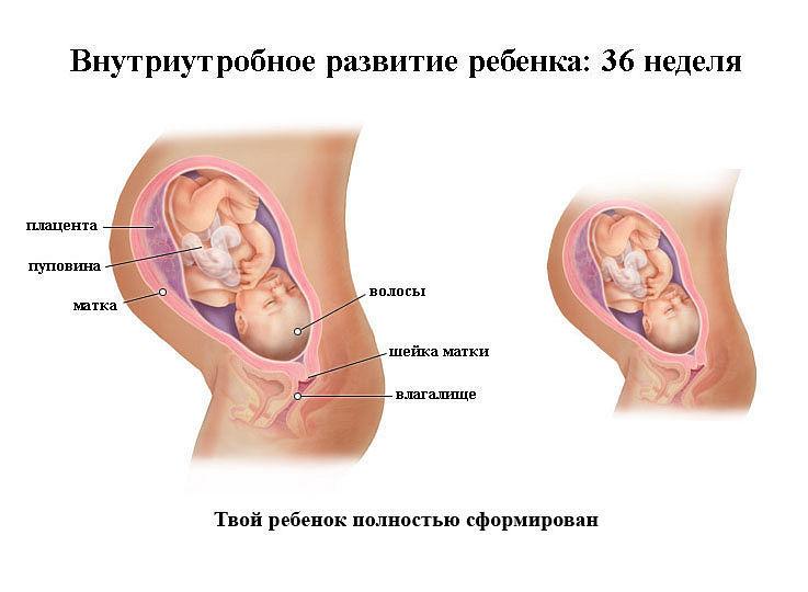 Роды на 35-36 неделе беременности последствия для ребенка