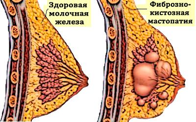 Фиброзно-кистозная мастопатия: причины, симптомы, комплексное лечение.