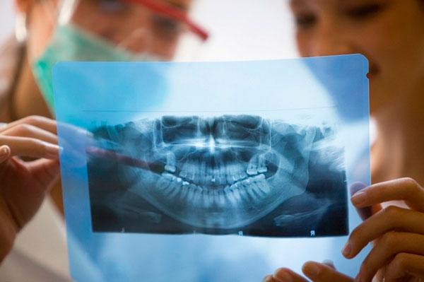 Панорамный снимок зубов сокольники