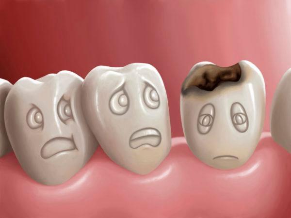 Лечение зубов во 2 триместре