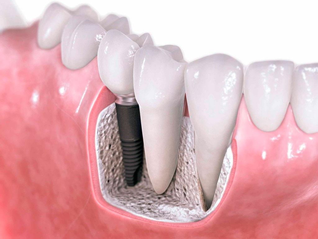 Лечить зубы в третьем триместре беременности