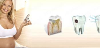 Специфика лечения зубов во время беременности